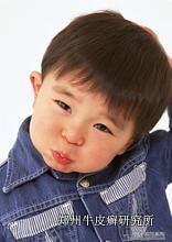 儿童牛皮癣护理