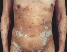 银屑病是什么引起的
