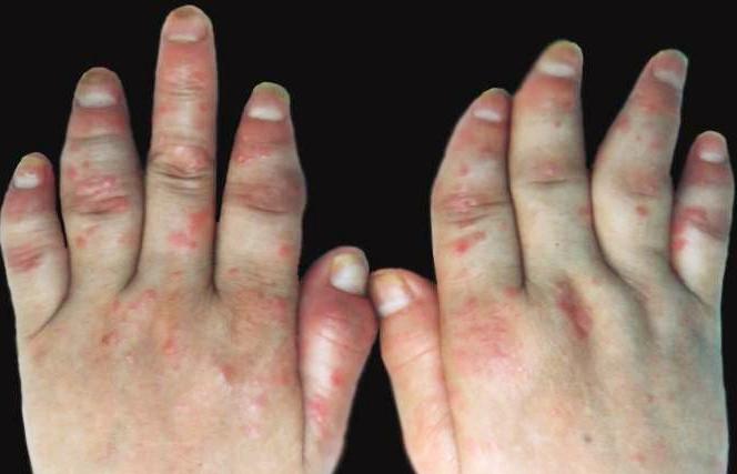 关节型牛皮癣有哪些临床特点